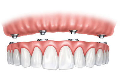 Implant Supported Dentures in Santa Cruz, CA